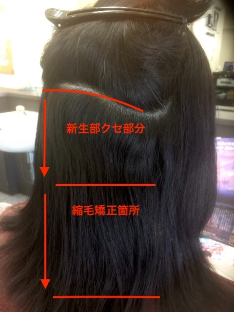 縮毛矯正の履歴